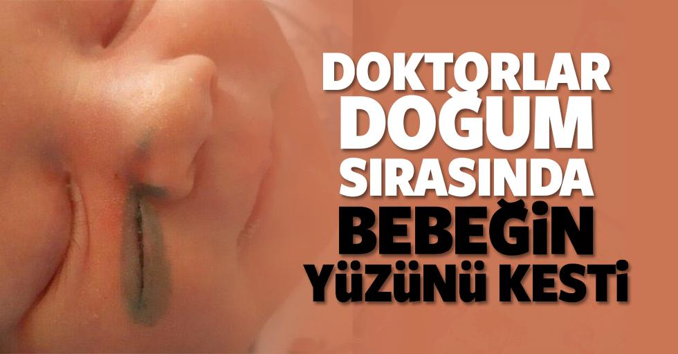 Doktorlar doğum sırasında bebeğin yüzünü kesti