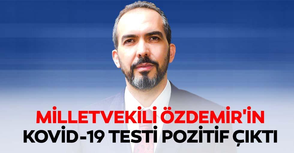 Milletvekili Özdemir'in kovid-19 testi pozitif çıktı