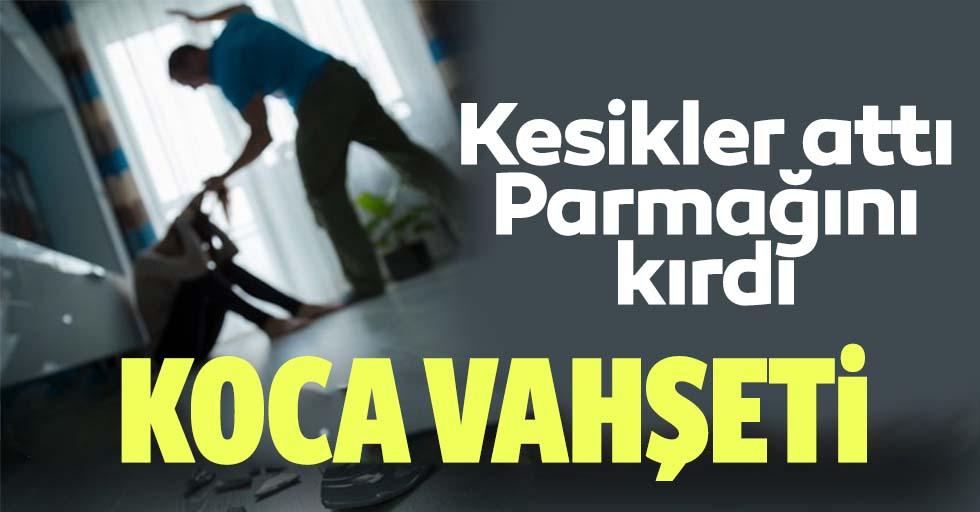 İstanbul'da koca vahşeti! Vücuduna kesikler attı, parmağını kırdı