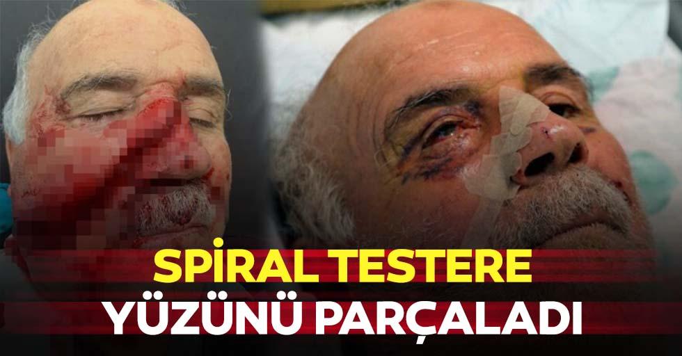 Spiral testere yüzünü parçaladı