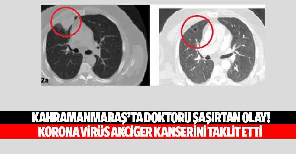 Kahramanmaraş'ta doktoru şaşırtan olay! Korona virüs akciğer kanserini taklit etti