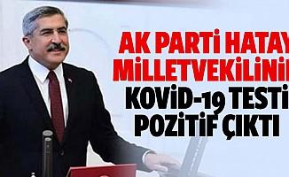 Ak Parti Hatay milletvekilinin kovid-19 testi pozitif çıktı