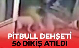 Pitbull Dehşeti, 56 Dikiş Atıldı